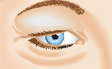 Blepharitis: Eyelid Inflamation
