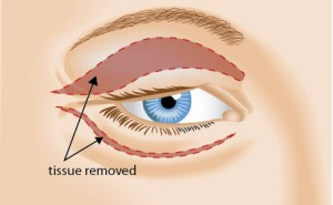 Blepharoplasty Diagram