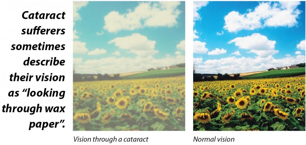 Cataract Microsurgery Comparison
