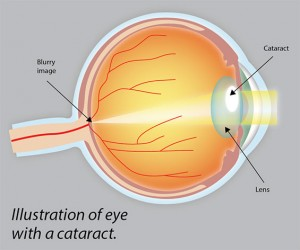 Illustration of eye with a cataract