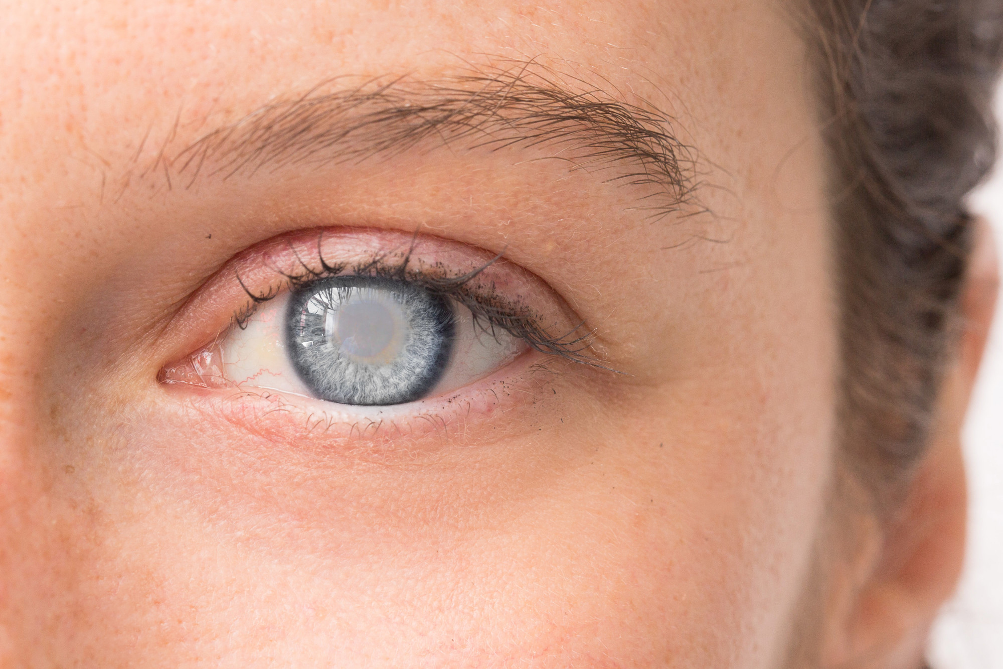 The 3 Most Common Types of Cataracts | Drs. Campbell, Cunningham, Taylor,  and Haun